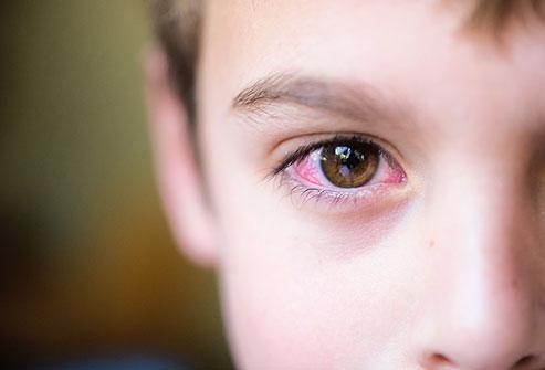 اختلالات پلک در کودکان