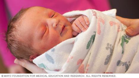 خصوصیات-ظاهری-نوزاد-سالم-چشم
